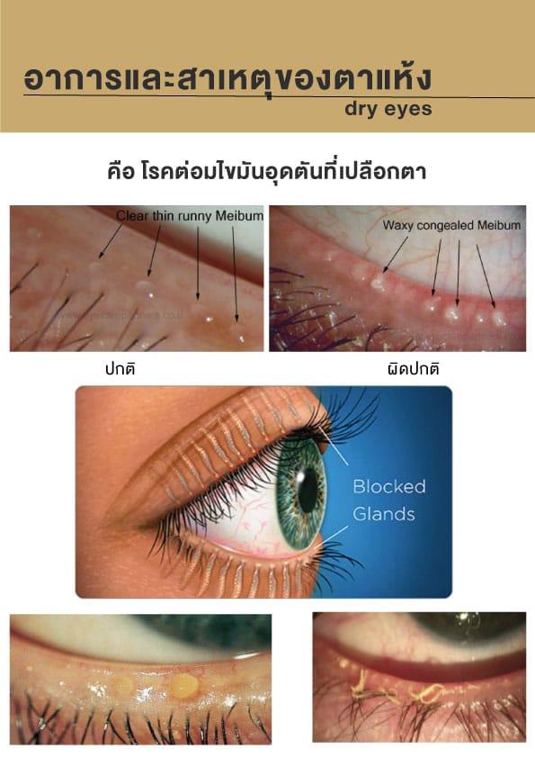 รักษาตาแห้ง