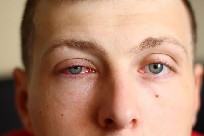 ตาแดง